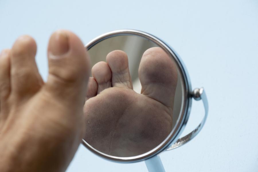Für Diabetiker besonders wichtig: Fußpflege